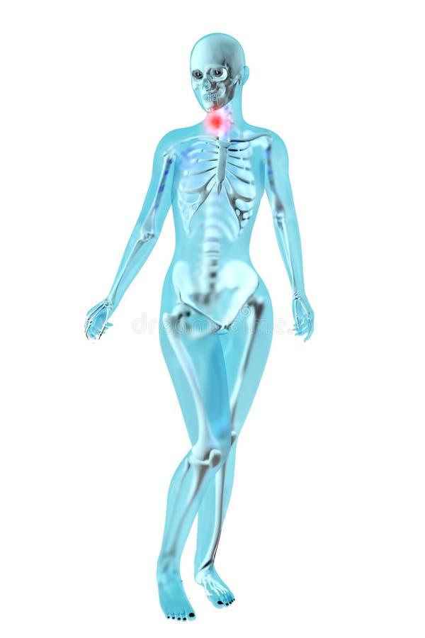 Żeńska anatomia - gardło obolałość ilustracja wektor