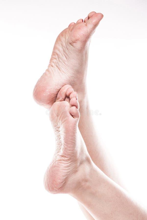 Żeńska stopa z pedicure'em i biedna sucha skóra na piętach fotografia royalty free