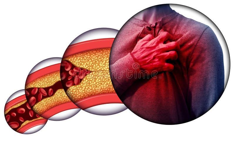 人的心脏疾患 皇族释放例证