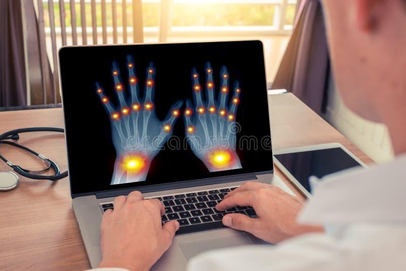 E Conceito da radiologia e da osteodistrofia foto de stock royalty free