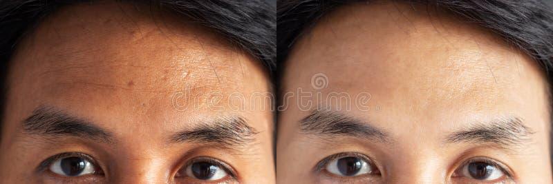 E Haut mit Problemen der Sommersprossen, der Pore, der stumpfen Haut und der Falten stockbilder