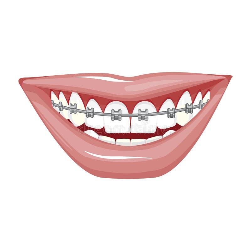 E Paréntesis en los dientes Abra la boca stock de ilustración