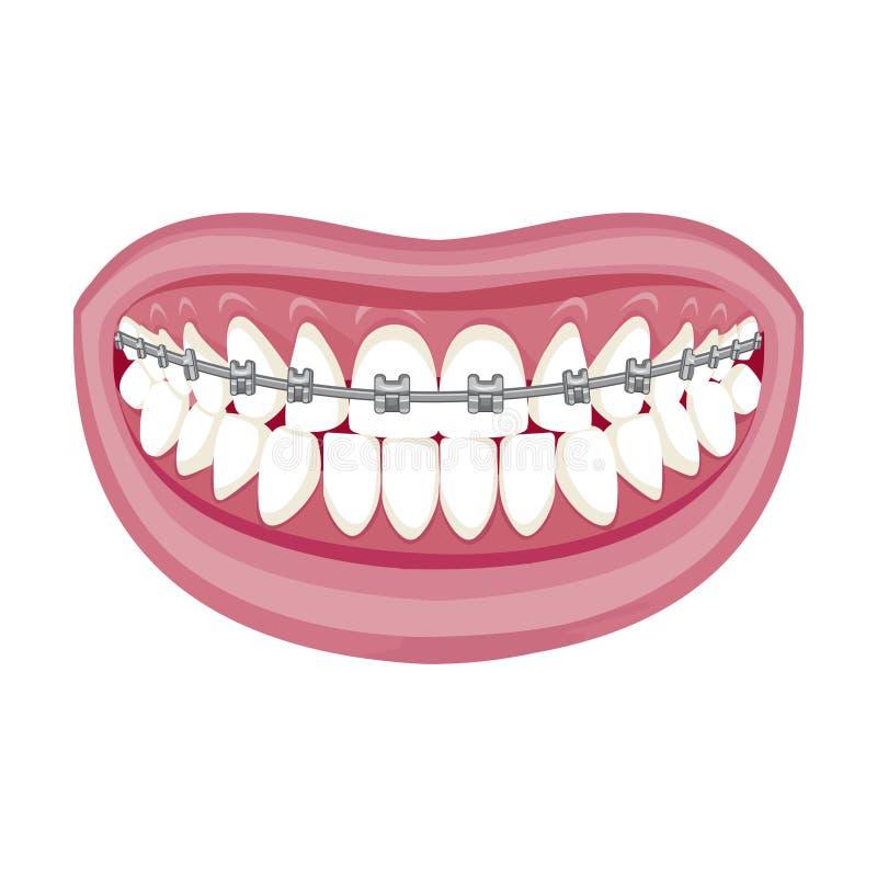 E Paréntesis en los dientes Abra la boca libre illustration