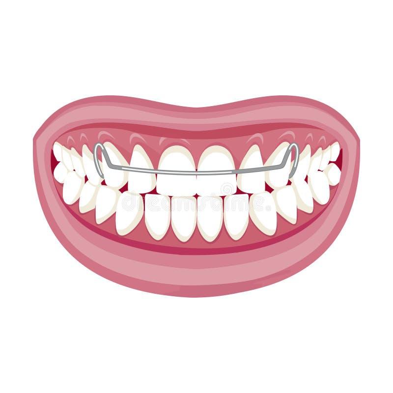 E Paréntesis en los dientes Abra la boca ilustración del vector