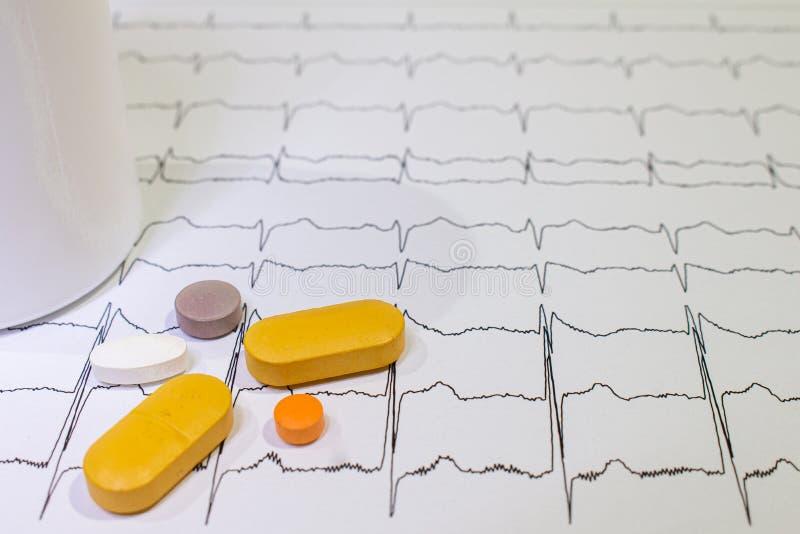 Электрокардиограмма с синдромом Brugada Покрашенные таблетки на пути EKG Неожиданная сердечная смерть должная к аритмичностям стоковая фотография