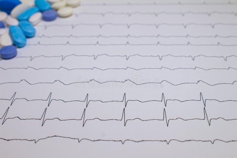 Электрокардиограмма с синдромом Brugada Покрашенные таблетки на пути EKG Неожиданная сердечная смерть должная к аритмичностям стоковые фотографии rf