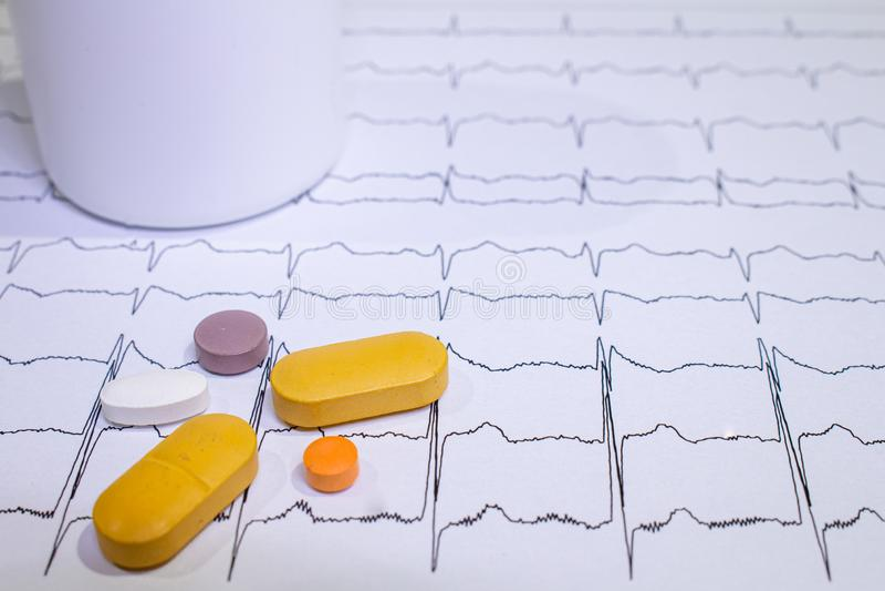 Электрокардиограмма с синдромом Brugada Покрашенные таблетки на пути EKG Неожиданная сердечная смерть должная к аритмичностям стоковые изображения rf