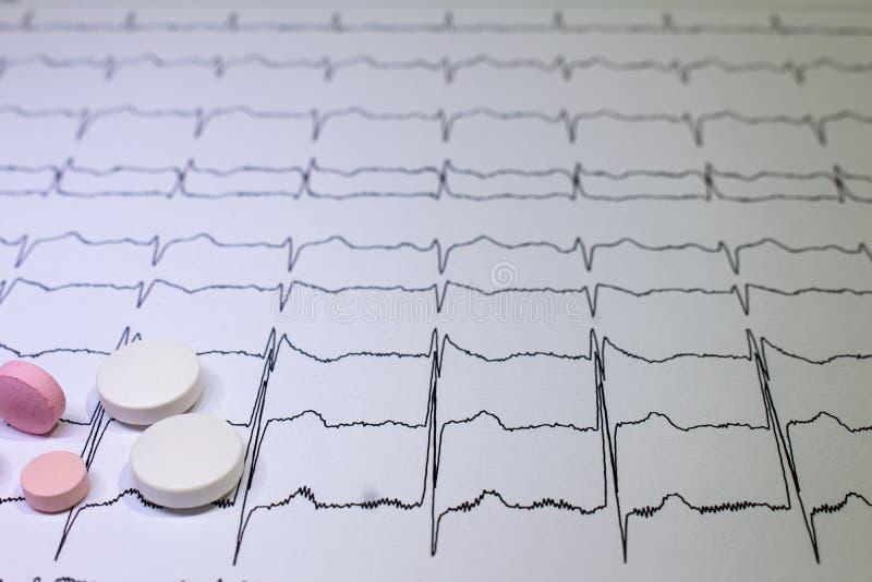Электрокардиограмма с синдромом Brugada Покрашенные таблетки на пути EKG Неожиданная сердечная смерть должная к аритмичностям стоковое фото
