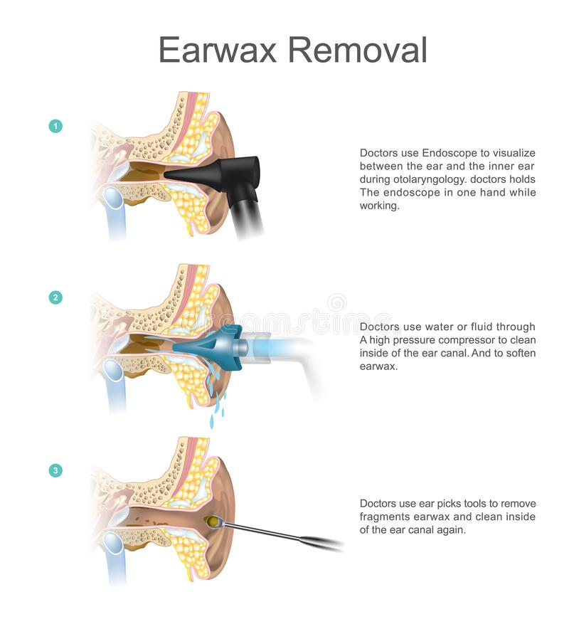 Earwax removal earwax s a common problem which is easily treate download earwax removal earwax s a common problem which is easily treate stock vector illustration ccuart Gallery
