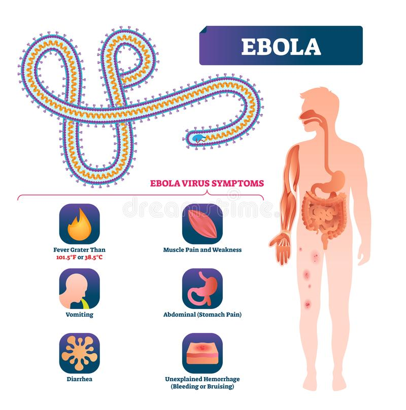 Ebola-Vektorillustration Beschriftete Virusbakterien Infektionssymptome entwerfen stock abbildung