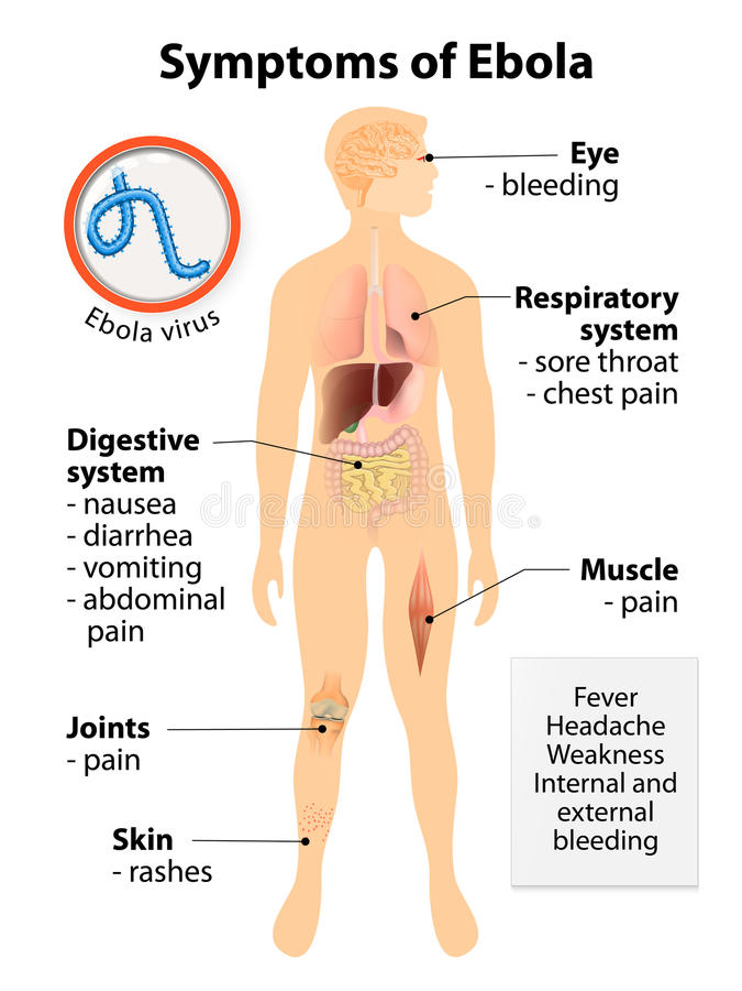 Ebola virus disease stock illustration
