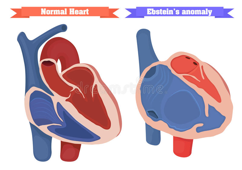 Ebstein-Abweichung gegen normale Herzstruktur-Vektorillustration stock abbildung