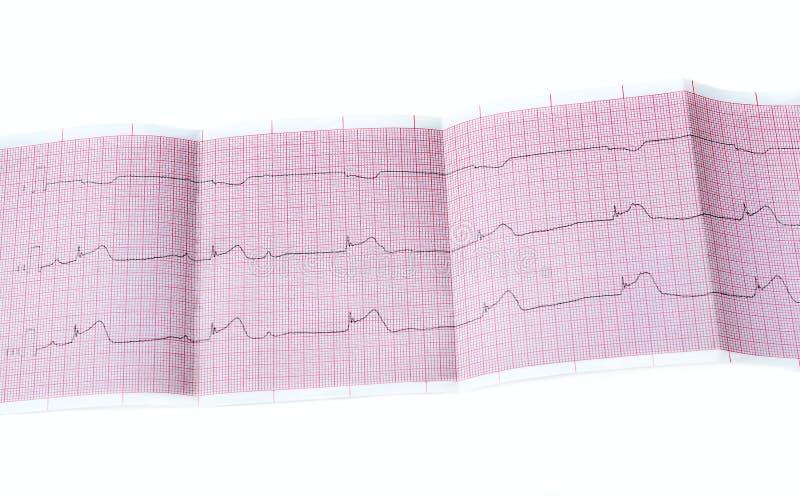ECG με την οξεία περίοδο macrofocal μυοκαρδιακού εμφράγματος, φραγμός ΙΙ AV βαθμός στοκ φωτογραφία με δικαίωμα ελεύθερης χρήσης