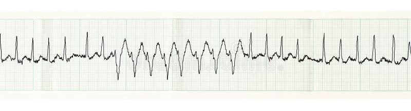 ECG以发作心房颤动和瞬变disturban 库存照片