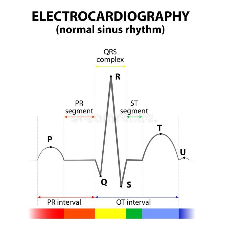 ECG av en hjärta i normal bihålarytm royaltyfri illustrationer