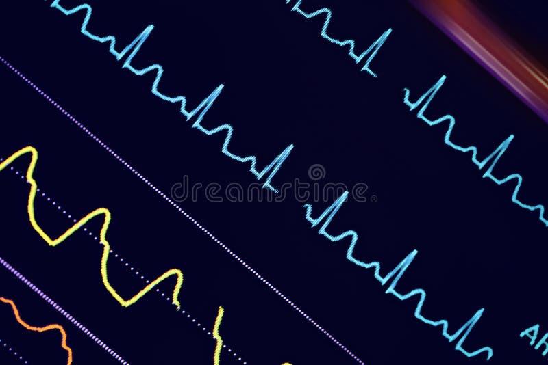 ECG colorido agita en el monitor fotos de archivo libres de regalías