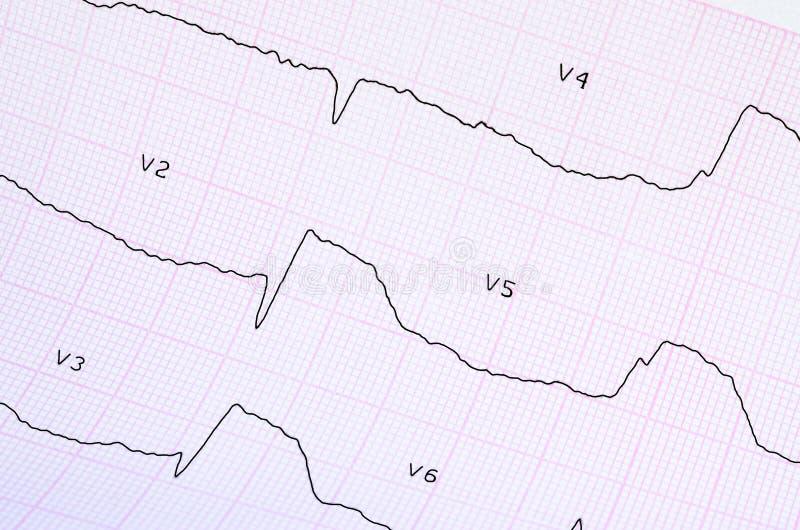 ECG con período agudo de infarto del miocardio anterior extenso grande-focal imágenes de archivo libres de regalías