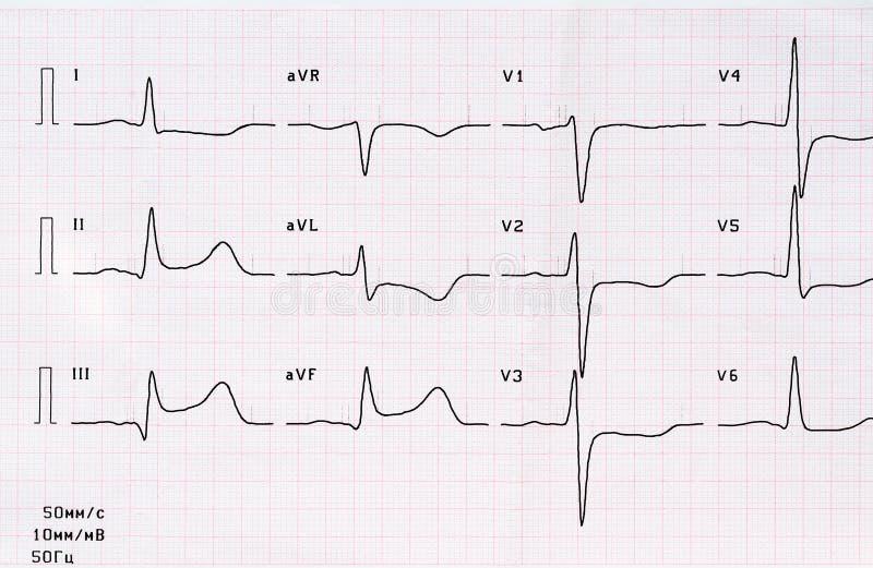 ECG con período agudo de infarto del miocardio diafragmático posterior grande-focal imágenes de archivo libres de regalías