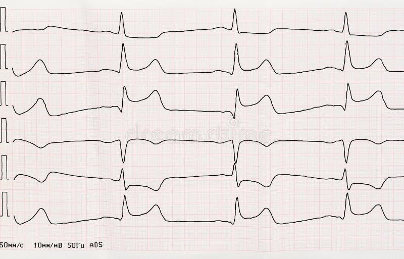 ECG con período agudo de infarto del miocardio macrofocal fotos de archivo