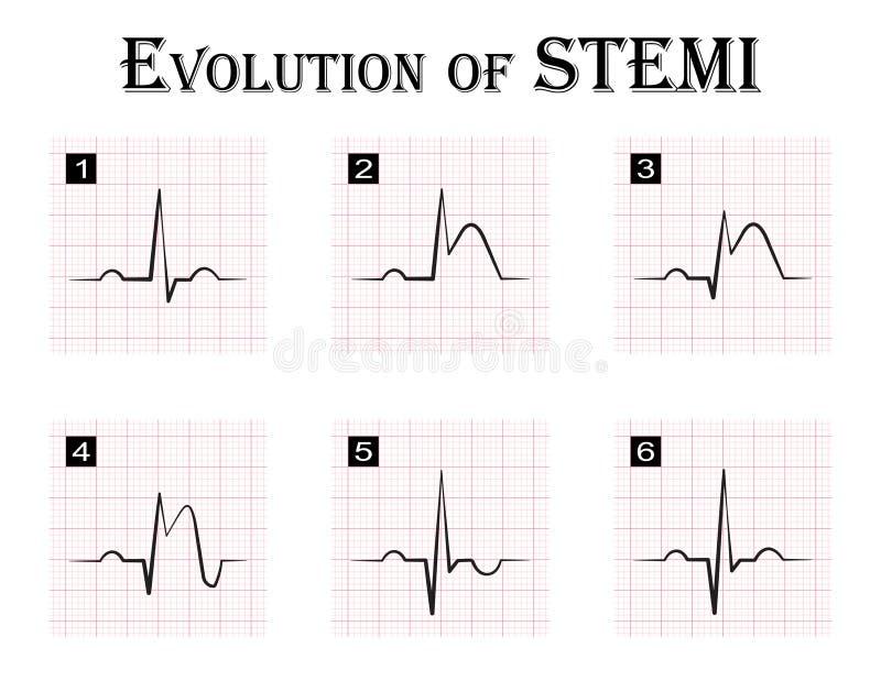 ECG de la evolución (gradual) de STEMI ilustración del vector