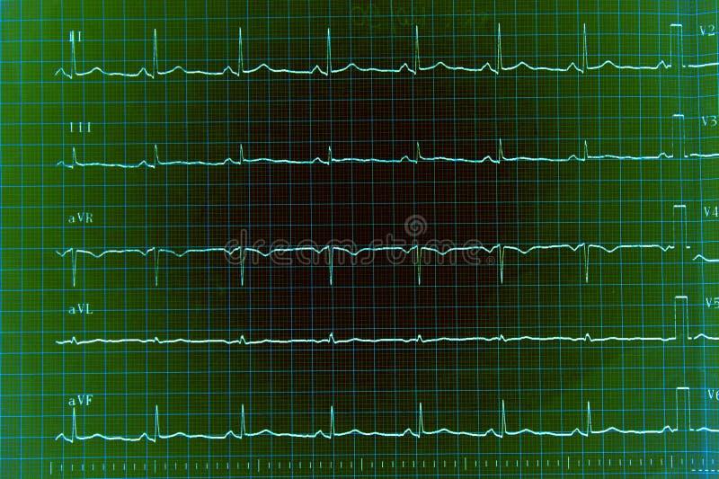 ECG Diagramm Stockbild
