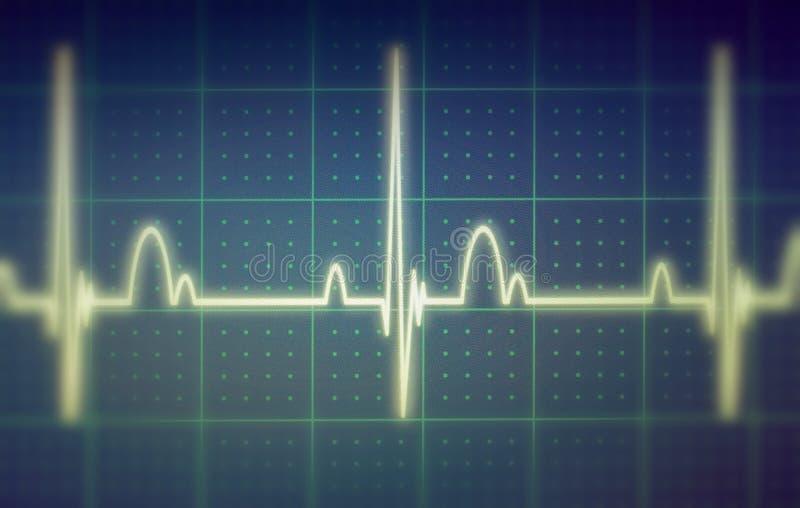 ECG-/EKGbildskärm royaltyfria foton