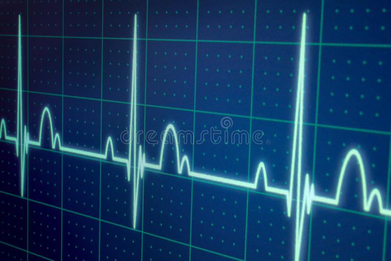 ECG-/EKGbildskärm arkivfoto