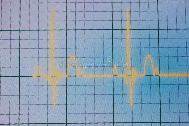ECG-/EKGbildskärm arkivbild