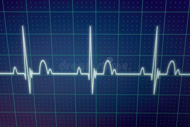 ECG-/EKGbildskärm royaltyfria bilder
