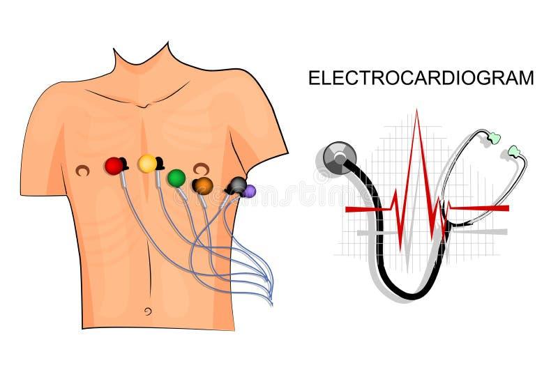 ECG, el paciente con los electrodos en el pecho stock de ilustración