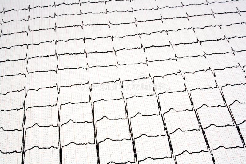 ECG - Grafico di EKG fotografia stock