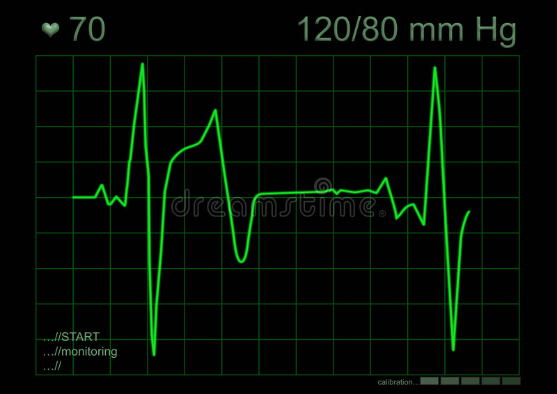 Download ECG graph stock illustration. Image of health, life, anatomy - 1058678