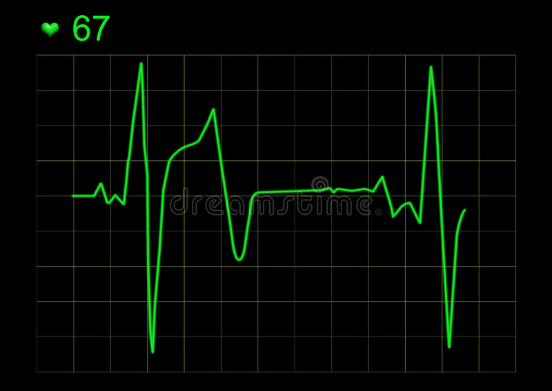 ECG graph. Graph of ECG stock illustration