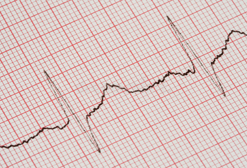 ECG graph royalty free stock image