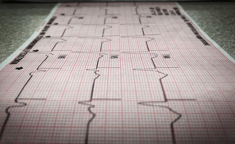 ECG 12-Lead de un paciente que es establecido el paso imágenes de archivo libres de regalías