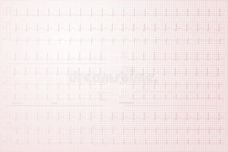ECG line in the squared notebook. Cardiogram with lined paper as background royalty free illustration