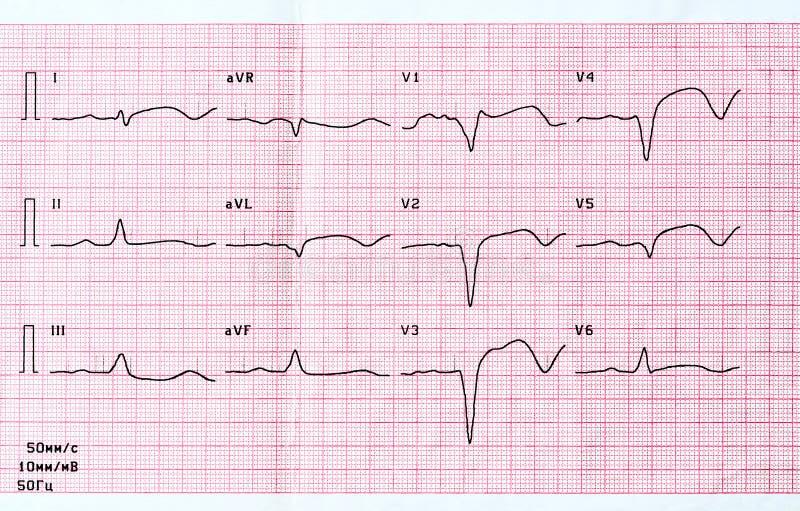 ECG met scherpe periode van groot-brandpunts wijdverspreid voorafgaand myocardiaal infarct stock afbeelding