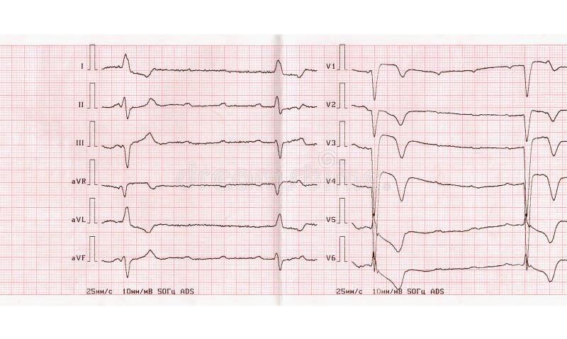 ECG met scherpe periode van myocardiaal infarct, volledige atrioventricular blokkade stock afbeelding