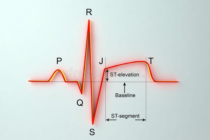 ECG in myocardial infarction. Illustration showing ST elevation, labeled image. ECG in myocardial infarction. 3D illustration showing ST elevation, labeled image royalty free illustration