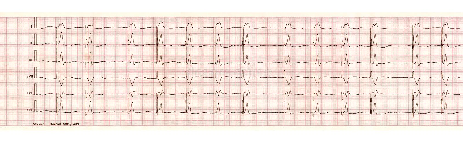 ECG with pacemaker arrhythmia ventricular stimulation. Cardiology and cardiosurgery. ECG tape with the pacemaker arrhythmia the ventricular stimulation royalty free stock photo