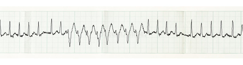 ECG with paroxysm of atrial fibrillation and transient disturbances of intraventricular conduction stock photo
