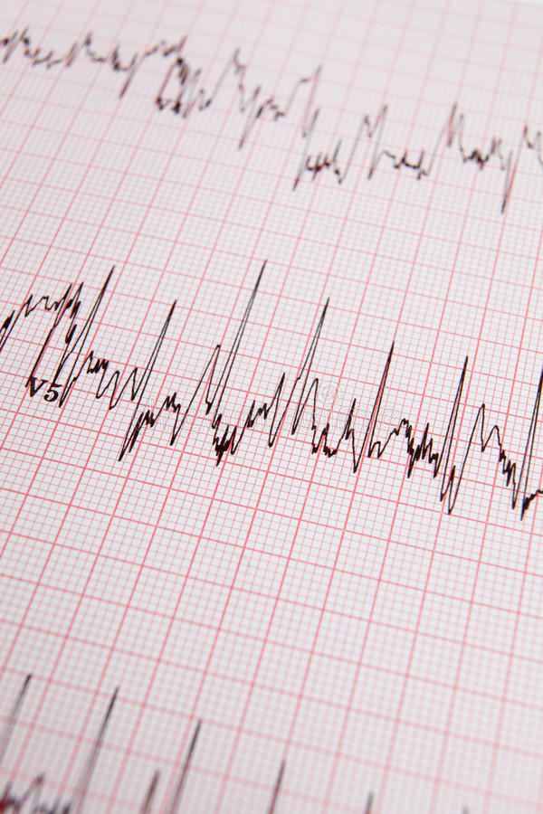 Download ECG print out stock image. Image of check, concept, monitor - 21589879