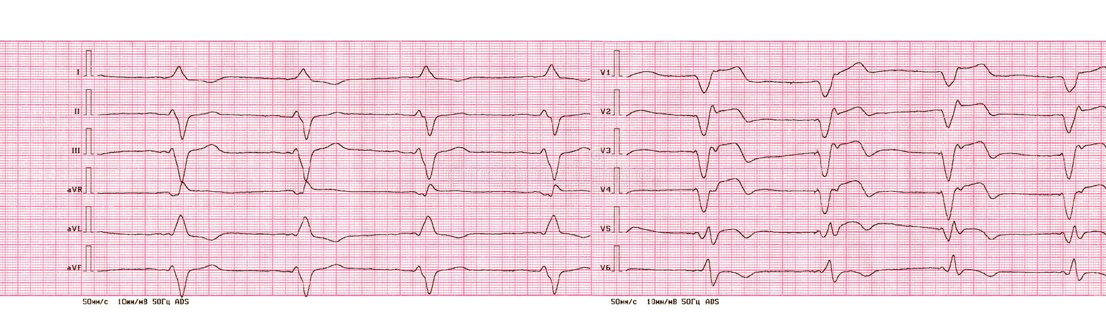 ECG with rhythm of artificial pacemaker ventricular pacing. The ECG tape with the rhythm of an artificial pacemaker the ventricular pacing stock image