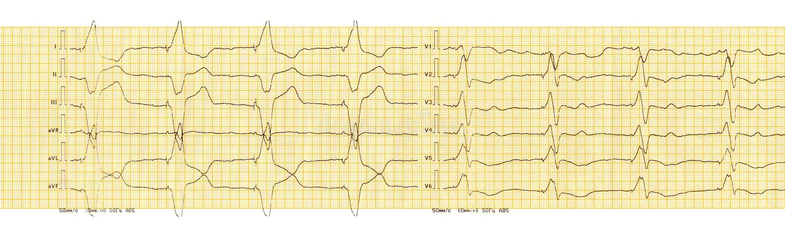ECG with rhythm of artificial pacemaker ventricular stimulation. The ECG tape with the rhythm of an artificial pacemaker ventricular stimulation stock images