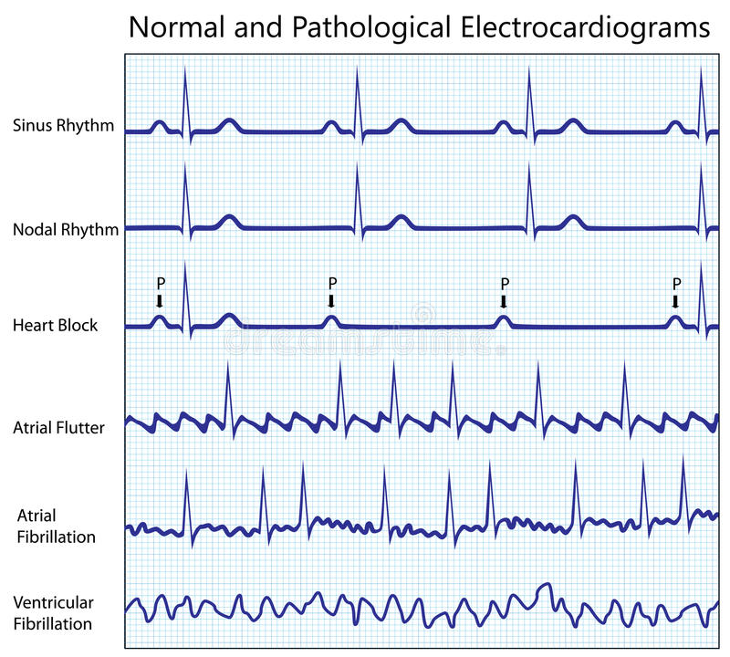 ECG set. Normal and diseased ecg collection, eps8