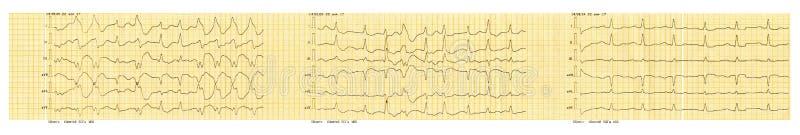 ECG tape with paroxysm of atrial fibrillation and restoration of sinus rhythm royalty free stock photography