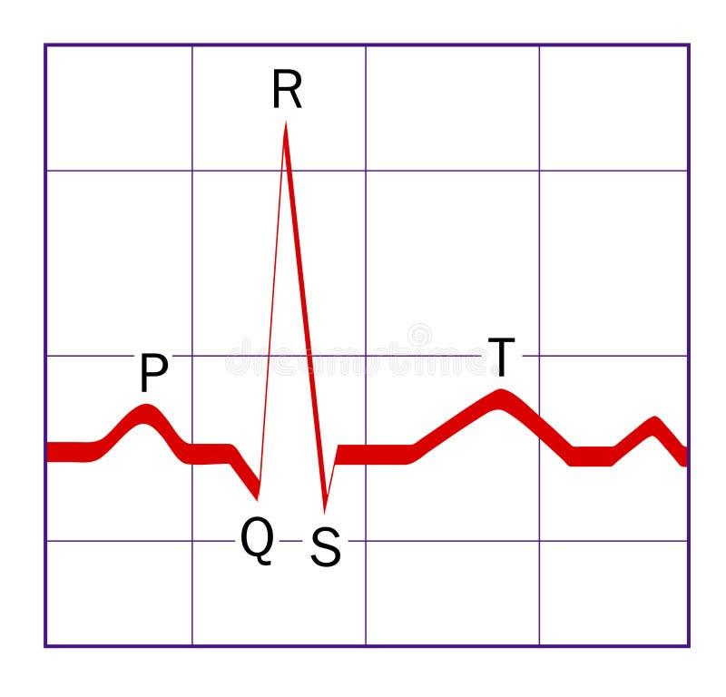 ECG trace. Diagram of a typical ECG (EKG) QRS wave vector illustration