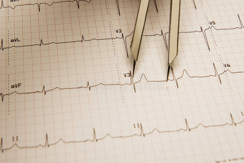 Download ECG Tracing Stock Images - Image: 7971714
