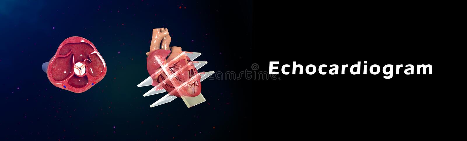 Echocardiogram vector illustratie