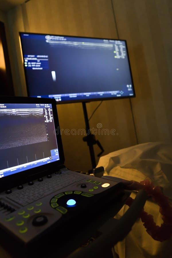 Echte Echografie, draagbaar ultrasoon aftasten in donkere ruimte royalty-vrije stock afbeeldingen